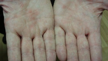 Иерсиниоз: что это такое? Симптомы и способы лечения