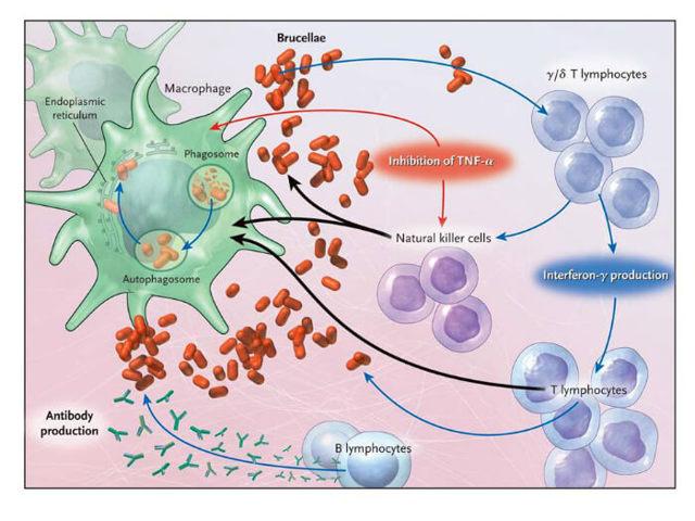 Бруцеллез симптомы у человека, профилактика и лечение