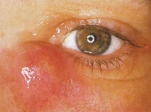 Особенности флегмоны, методы ее лечения и профилактика