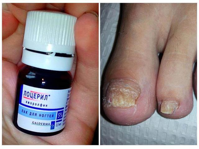 Лоцерил, инструкция по применению от грибка ногтей