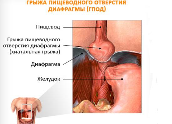 Грыжа пищевода, причины возникновения и методы лечения