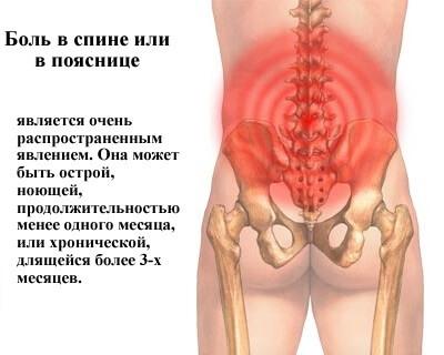 Боль в спине в области поясницы, причины и способы лечения