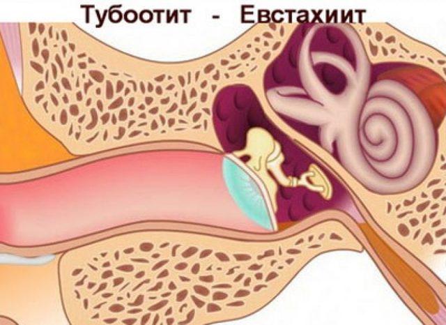 Евстахиит: что это такое? Симптомы и способы лечения