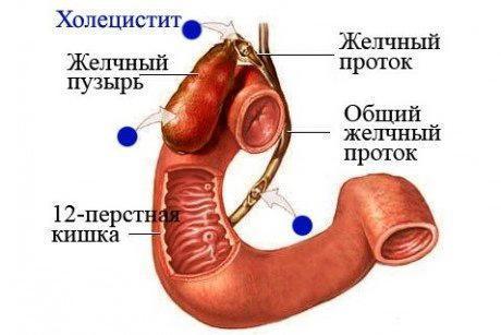Калькулезный холецистит: симптомы, лечение и диета