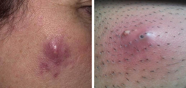 Пиодермия, что это такое? Симптомы, причины и лечение