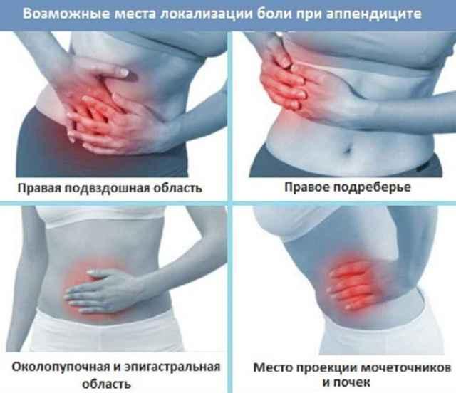 Первые симптомы аппендицита у женщин, признаки на ранней стадии