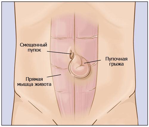 Симптомы пупочной грыжи (фото), лечение и возможные осложнения