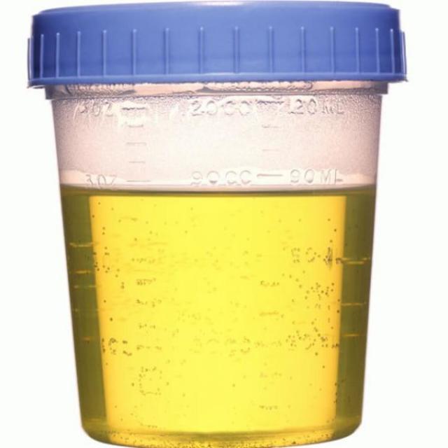 Как лечить хронический пиелонефрит у женщин и мужчин в домашних условиях?