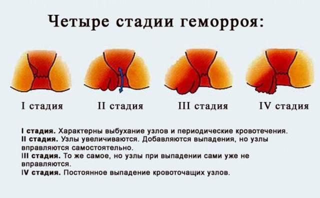 Свечи от геморроя Проктозан: инструкция по применению