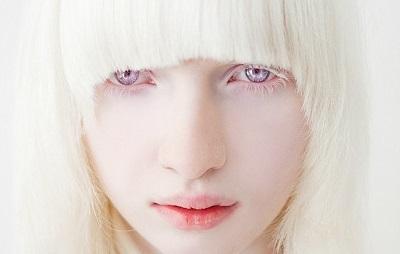 Альбинизм у человека: признаки, причины и лечение
