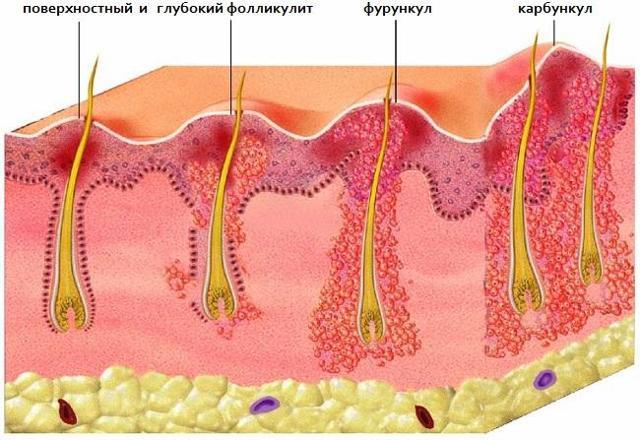 Фурункул: симптомы, лечение, осложнения и профилактика