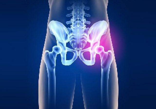 Артрит тазобедренного сустава: первые симптомы и схема лечения