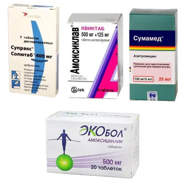 Симптомы тонзиллита, лечение и профилактика