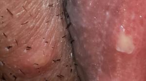 Причины вульвовагинита, лечение и первые симптомы (фото)
