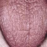 Синдром Шегрена: что это такое? Причины, симптомы и лечение