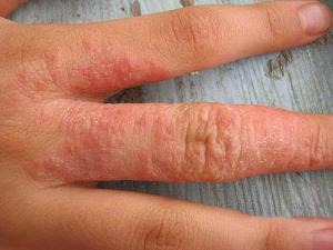 Лечение аллергического дерматита у взрослых, симптомы и профилактика