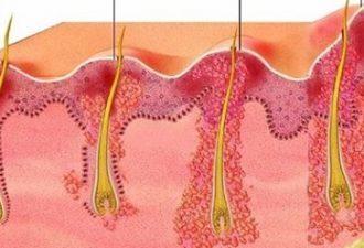 Фолликулит: симптомы, причины и способы лечения