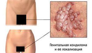 Вирус папилломы человека у женщин, что это такое? Причины и лечение