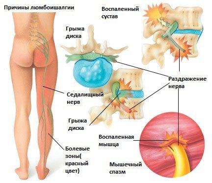 Люмбоишиалгия, что это такое? Симптомы и схема лечения