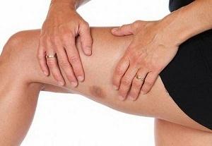 Аллергический васкулит: что это за болезнь? Симптомы, причины и лечение