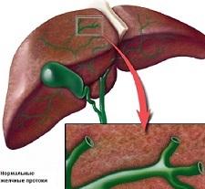 Симптомы холангита, лечение и причины возникновения