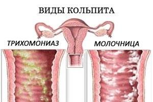 Кольпит у женщин, симптомы и лечение