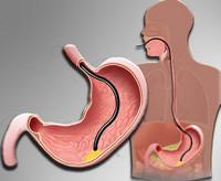 Полип в желудке – это опасно или нет? Симптомы и удаление полипов