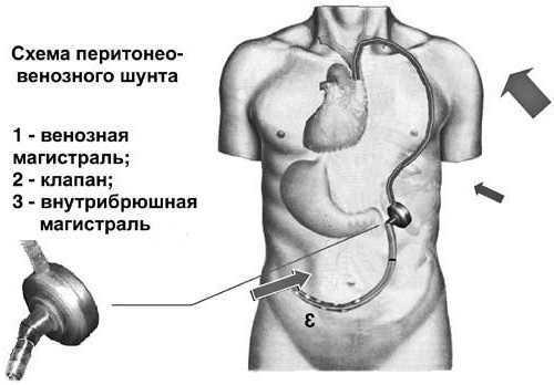 Асцит брюшной полости: симптомы и варианты лечения, прогноз для жизни