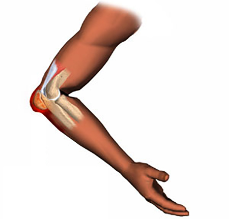 Бурсит локтевого сустава: фото, симптомы и лечение