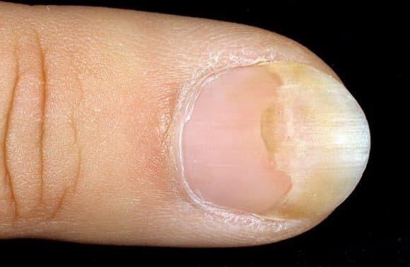 Как лечить онихолизис на ногах в домашних условиях