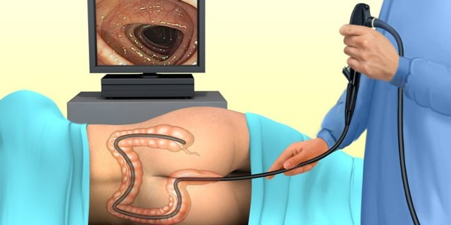 Как лечить хронический колит кишечника