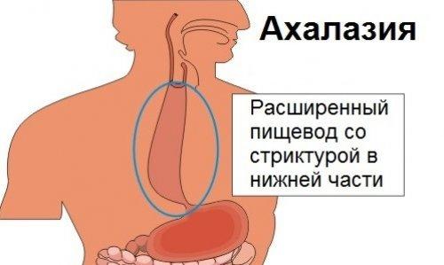 Ахалазия кардии пищевода: признаки, диагностика и лечение