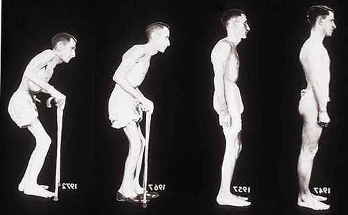 Болезнь Бехтерева: что это такое? Как лечить болезнь Бехтерева у мужчин и женщин в домашних условиях