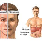 Чем опасен синдром Жильбера и что это такое простыми словами?