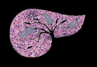 Гемангиома печени: что это такое, лечение и причины возникновения