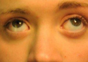 Болезнь Меньера: что это такое? Симптомы и лечение