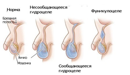 Водянка яичка у ребенка: причины и лечение, фото