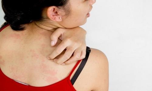 Почему возникает аллергическая крапивница и как ее лечить?
