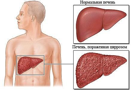 Билиарный цирроз печени: что это такое? Симптомы и лечение