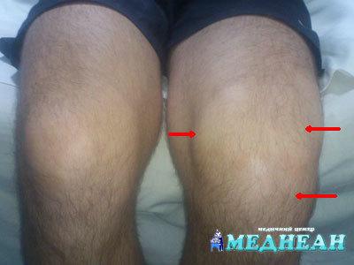 Первые симптомы артрита коленного сустава, лечение и правила профилактики