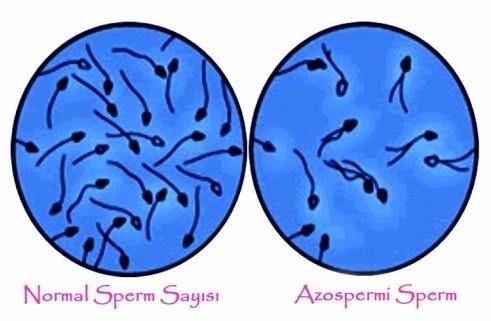 Азооспермия что это такое: причины, лечение, отзывы мужчин
