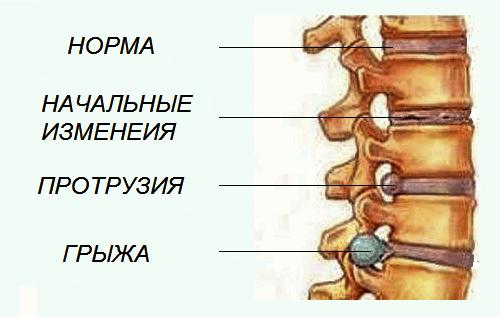 Грыжа поясничного отдела позвоночника: симптомы и лечение
