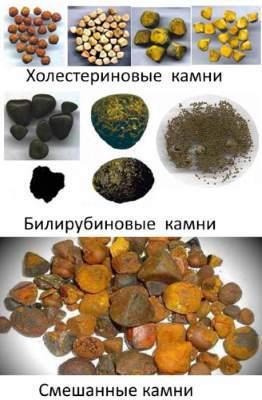 Симптомы камней в желчном пузыре, лечение и правильная диета