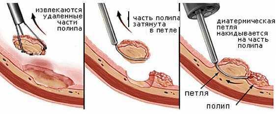 Полипы в кишечнике – опасно ли это? Симптомы и удаление полипов