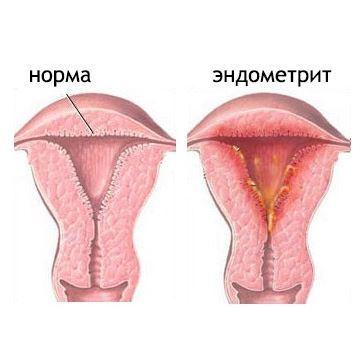 Эндометрит: причины, симптомы и способы лечения