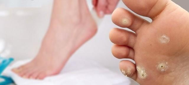 Подошвенные бородавки: что это такое и как лечить?