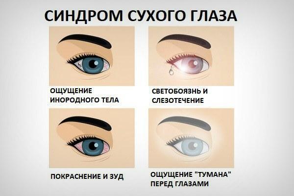 Синдром сухого глаза: симптомы и лечение, народные средства