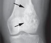 Остеосаркома, что это такое? Причины и лечение