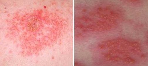 Симптомы дерматита, причины и лечение у взрослых