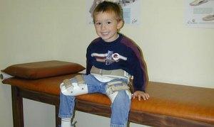 Причины, симптомы и лечение болезни Пертеса у детей и взрослых